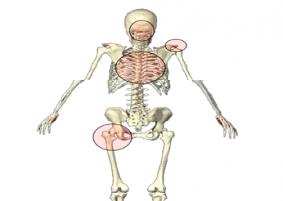 Joint-By- Joint Approach for Chiropractors